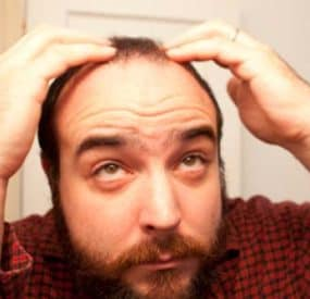 Recent Studies Show a Connection between Male Baldness and Heart Disease