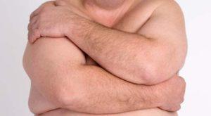 Gynecomastia: The Causes, and Treatments