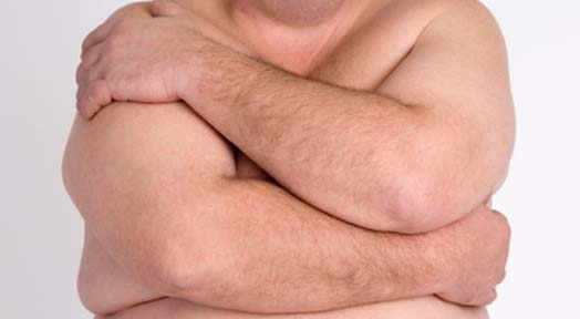 Gynecomastia: The Causes, and Treatments