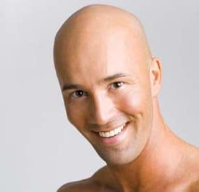 Why Being Bald is Better