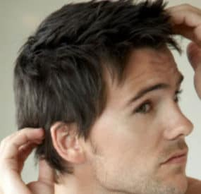 Hair Implants for Men