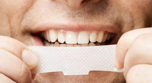 Tooth Whitening. A Comparison of Methods