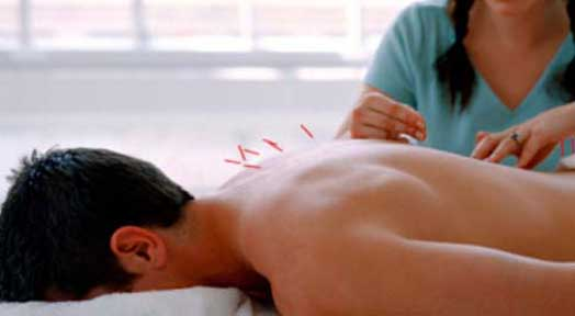 Health Benefits of Acupuncture you should know