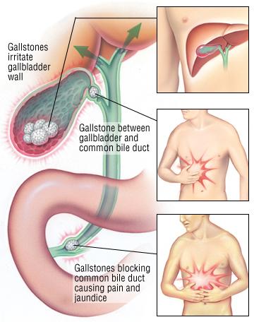harvard.edu gallbladder health