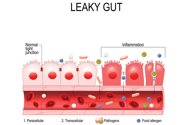 Signs of a Leaky Gut and How to Heal it - inflammation