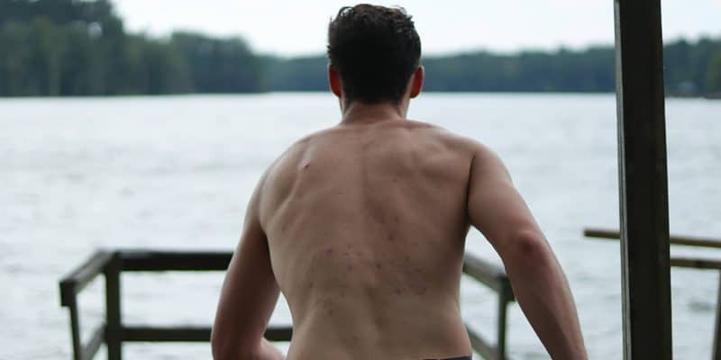 7 Ways Guys Can Tackle Back Acne